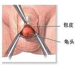 包皮环切手术及费用