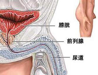 男性尿道炎是什么引起的呢